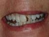 02.1Anne-L-fall-broke-tooth