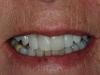 02.2-Anne-L-fall-broke-tooth