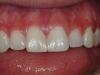 closing-gaps-between-teeth-02